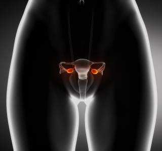 DEGUM-Experten fordern Ultraschall der Eierstöcke als Kassenleistung