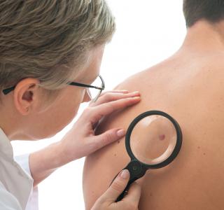 Hautkrebsreport: Nur jeder Sechste geht zur Früherkennung