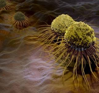 Darmkrebs-Vorsorge kann jederzeit wieder anlaufen