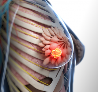 Brustkrebs%3A+Informationen+helfen+gegen+%C3%84ngste