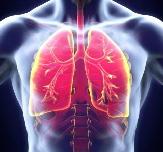 Lungenkrebs%3A+Experten+fordern+mehr+Pr%C3%A4vention