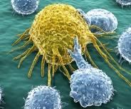 Krebs: Länger leben mit Immuntherapie