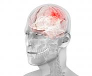 Hirnmetastasen – Herausforderung für Patienten und Ärzte