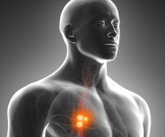 Reflux erhöht das Tumorrisiko