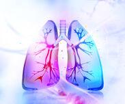 Personalisierte Medizin: Lungenkrebs mit den eigenen Waffen schlagen