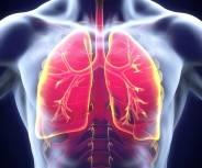 Lungenkrebs: Experten fordern mehr Prävention