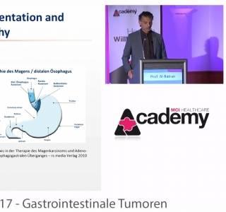 Zum Video: Vorschau auf kommende CME-Videos zum Thema Magenkarzinom